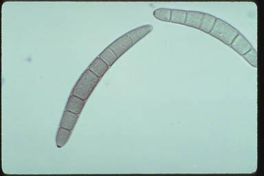 helminthosporium incurvatum viferon gél papilloma véleményekből